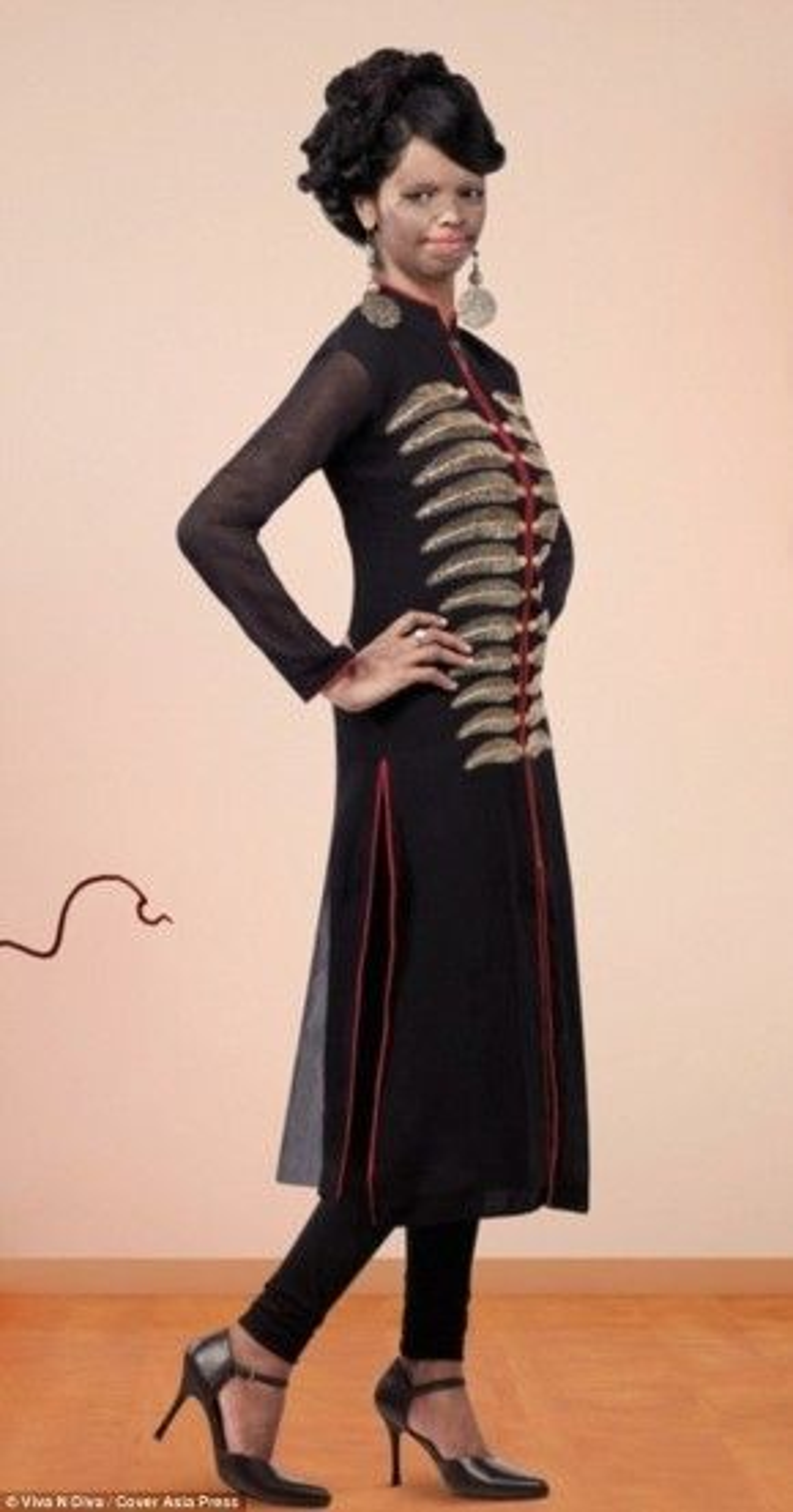Một số cách mẫu thiết kế nằm trong bộ sưu tập thời trang dành cho các phụ nữ kém mày mắn do nạn tạt axit gây ra như cô.