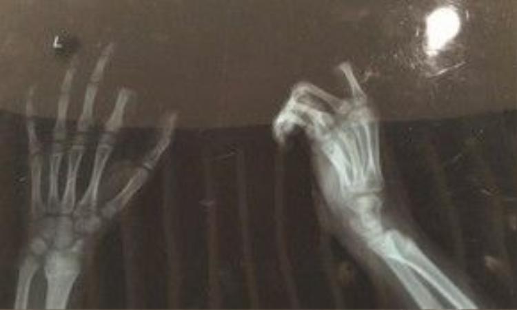 Ảnh chụp X-quang cho thấy đầu ngón trỏ trên bàn tay trái của Xiaopeng đã bị cắt rời.