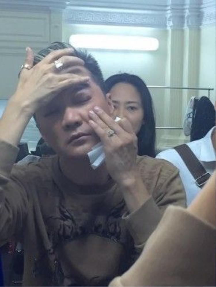 Vết thương trên mắt của Đàm Vĩnh Hưng.
