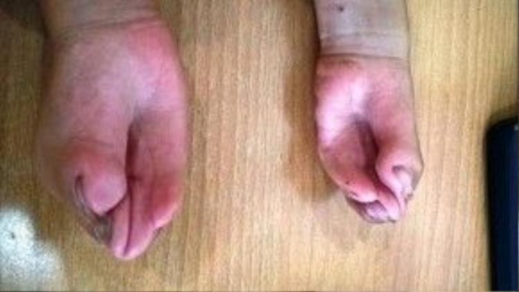 Đôi bàn tay cũng dị dạng do các ngón tay dính liền với nhau.