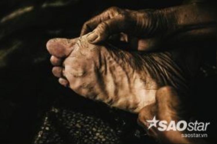 Đôi chân của bà gần như biến dạng vì mỗi ngày phải đi khắp các nẻo đường.