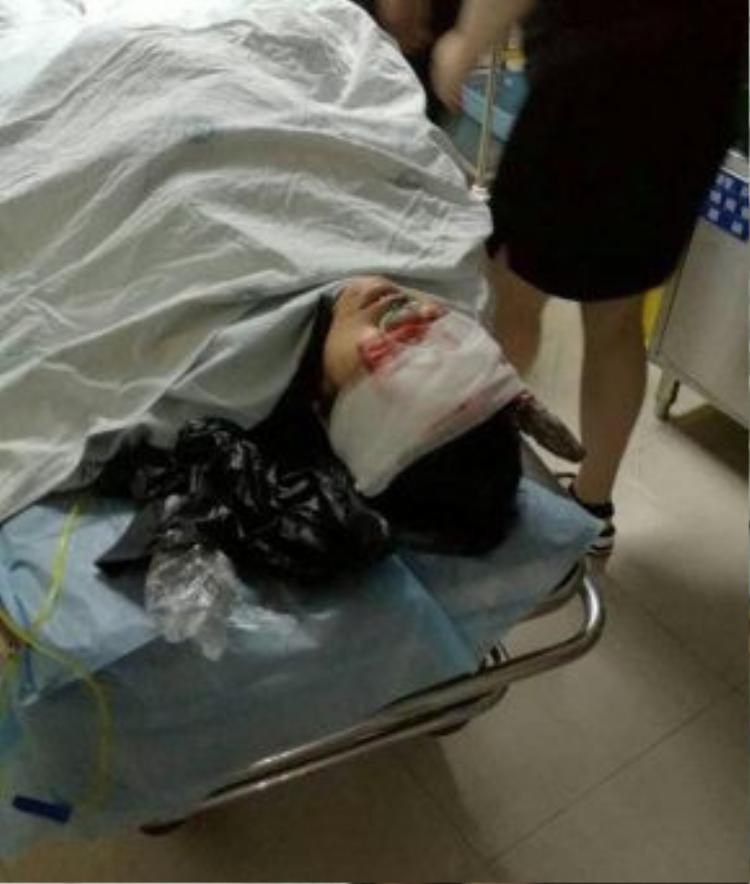 Bà Vương được đưa vào viện ngay lập tức với chiếc kìm đâm sâu vào đầu tới 15cm.