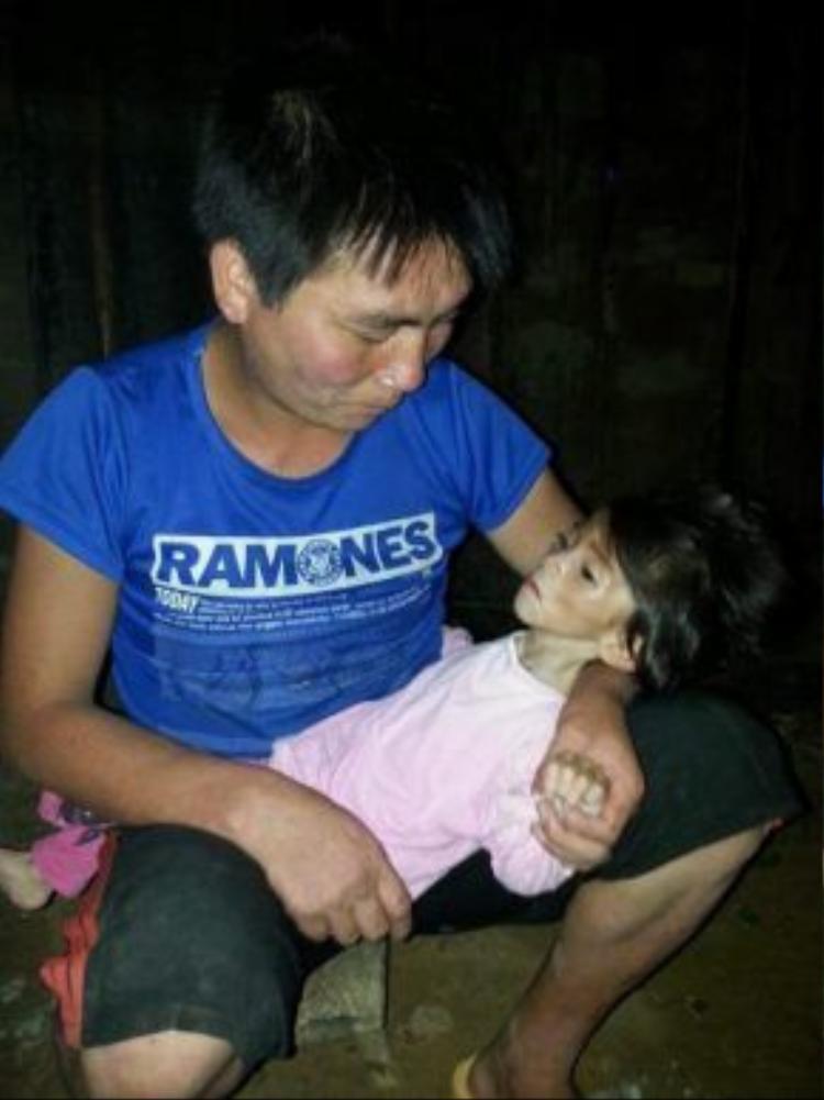 Do bị đói ăn lâu ngày, cháu Thào Thị Yến Nhi 14 tháng tuổi chỉ nặng 3,5kg.