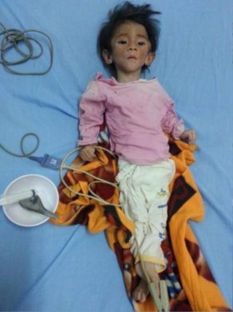 Chiều ngày 28.6, cháu Nhi được đưa vào Bệnh viện Sản Nhi Lào Cai để chữa trị.