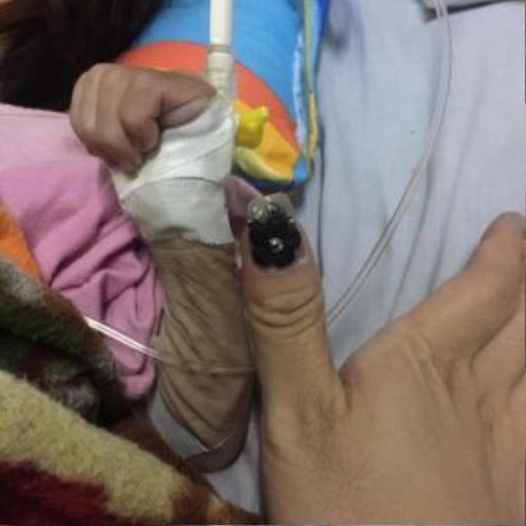 Tay của Yến Nhi 14 tháng tuổi chỉ to ngang ngón tay của 1 người trưởng thành.