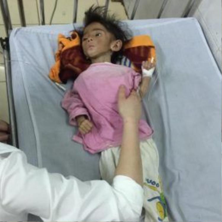 Sáng 29.6, Bác sĩ chẩn đoán cháu Yến Nhi bị suy dinh dưỡng nặng nên nền bại não thể đã bị co cứng.