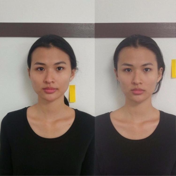 """Cao Thiên Trang là một trong những người đẹp Việt đi đầu trong việc trải nghiệm phương pháp làm đẹp này: """"Trang suýt khóc khi nhìn thấy sự thay đổi trên gương mặt mình""""."""