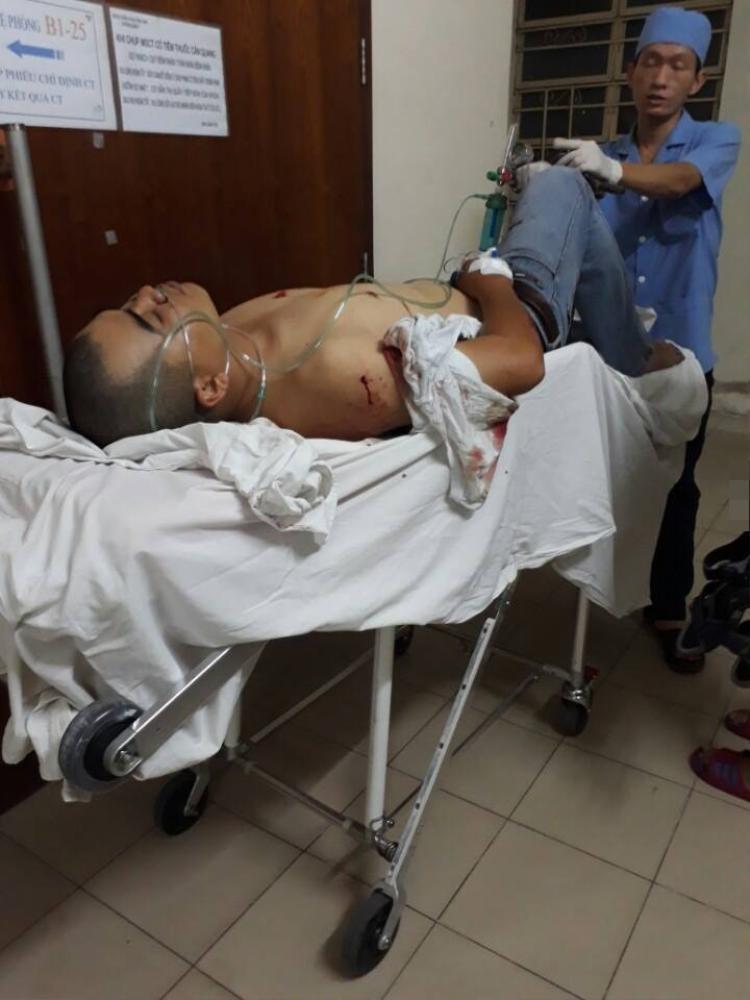 Xe ôm truyền thống tranh giành khách Grabbike, một người bị đâm tràn dịch màng phổi