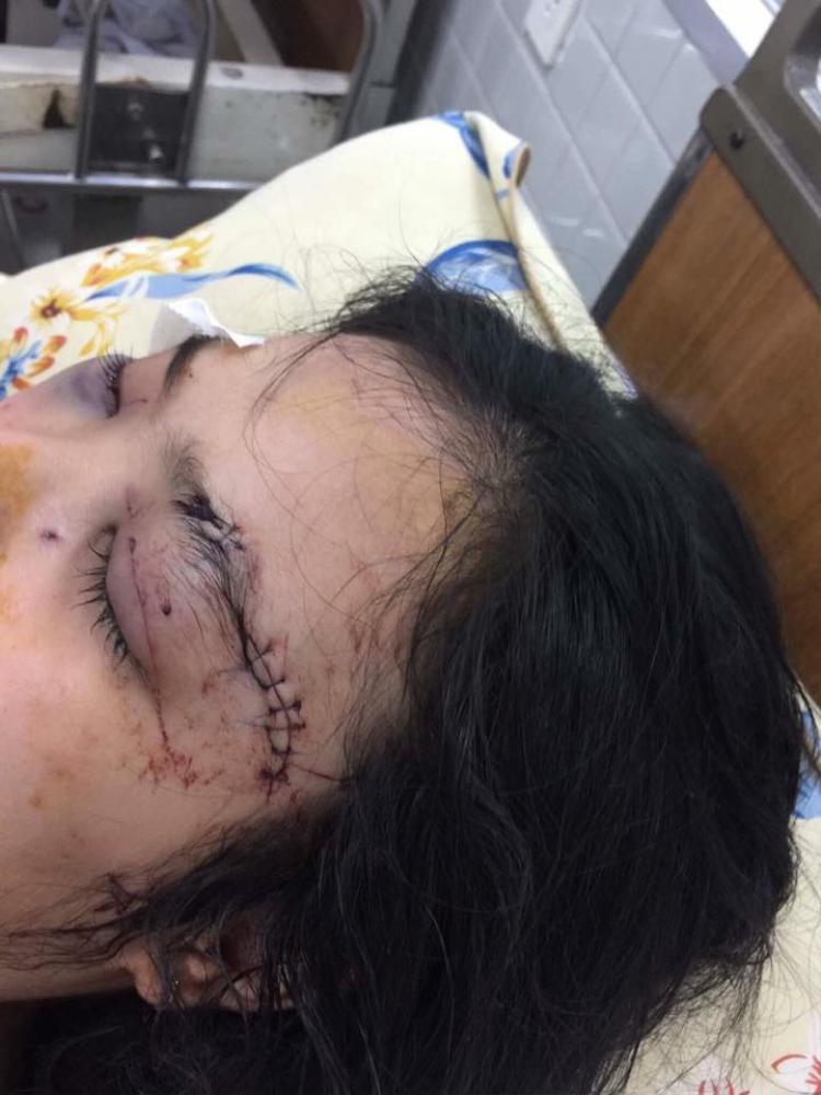 Nữ sinh N.T.N.Tr bị hành hung dã man gây thương tổn nhiều vùng trên cơ thể.