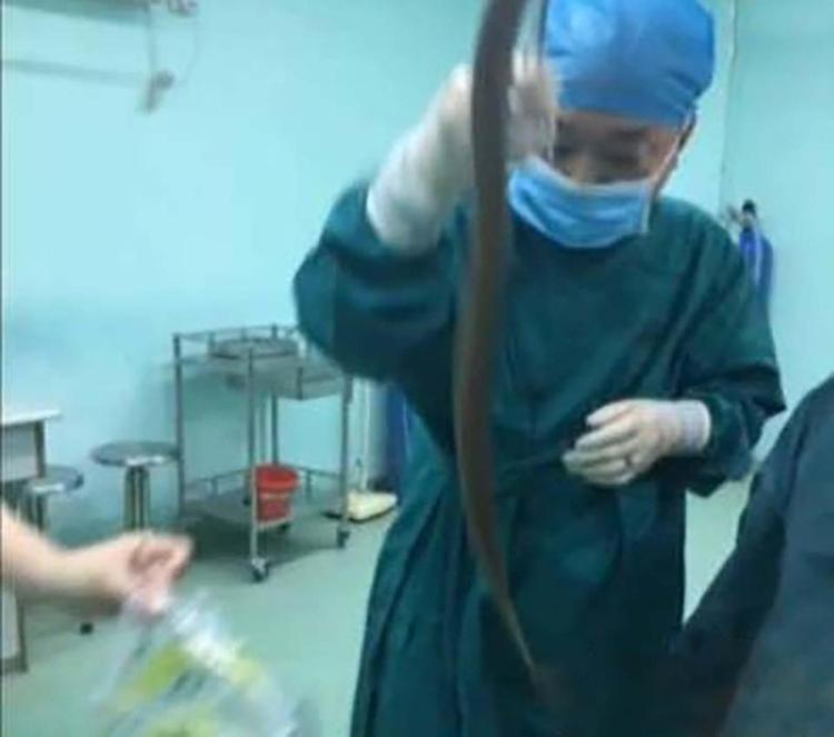 Nuôi lươn dài nửa mét trong bụng, người đàn ông khiến bác sĩ hoảng hồn vì kết quả thu được sau cuộc phẫu thuật