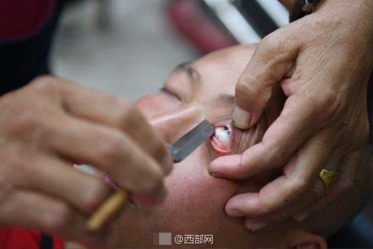 Rợn người phương pháp cạo mắt bằng dao lam của người Trung Quốc