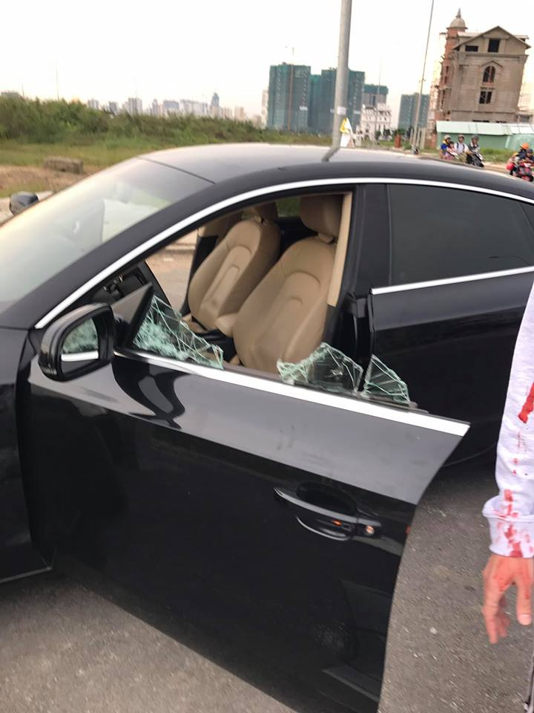 Hình ảnh kính xe vỡ nát và cánh tay rỉ máu khiến cộng đồng fan của Noo Phước Thịnh vô cùng lo lắng vì không biết chuyện gì đang xảy ra.