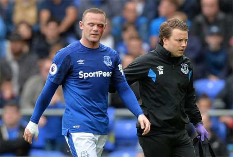 Rooney với gương mặt đẫm máu.