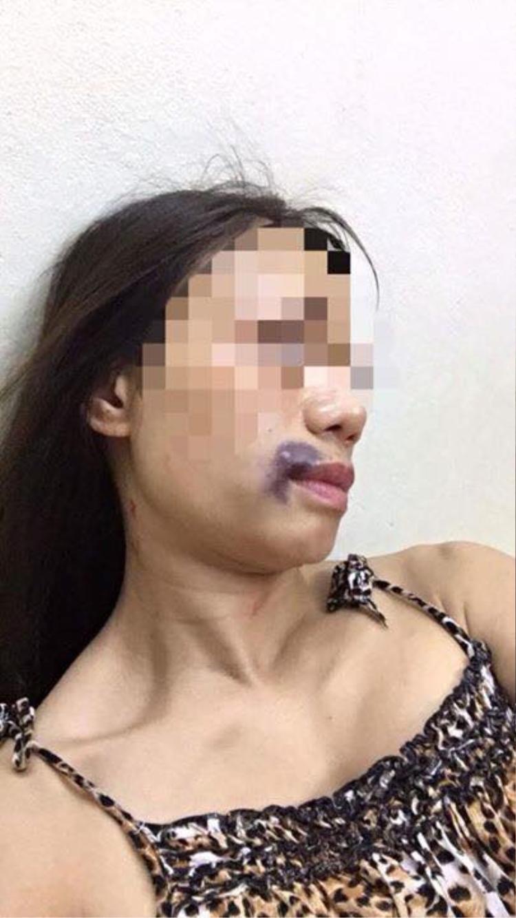Hình ảnh được cho là chị H. bị chồng đánh đập.
