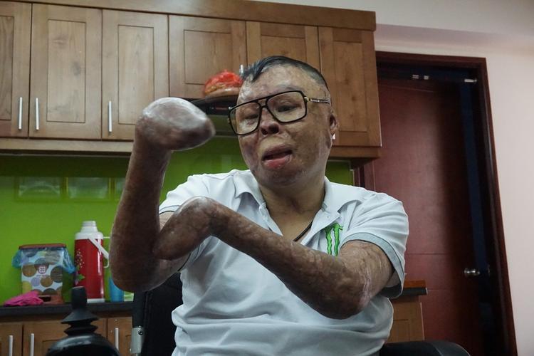Anh Dương bị mất hai bàn tay và hai đôi chân sau khi bị rơi máy bay khiến người bỏng nặng.