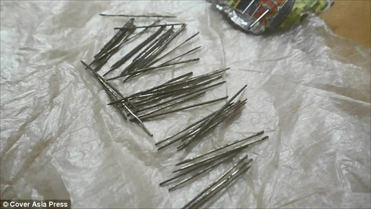 Kỳ lạ: Hơn 70 chiếc kim tiêm, kim khâu và đinh nhọn lần lượt trồi ra khỏi chân người phụ nữ