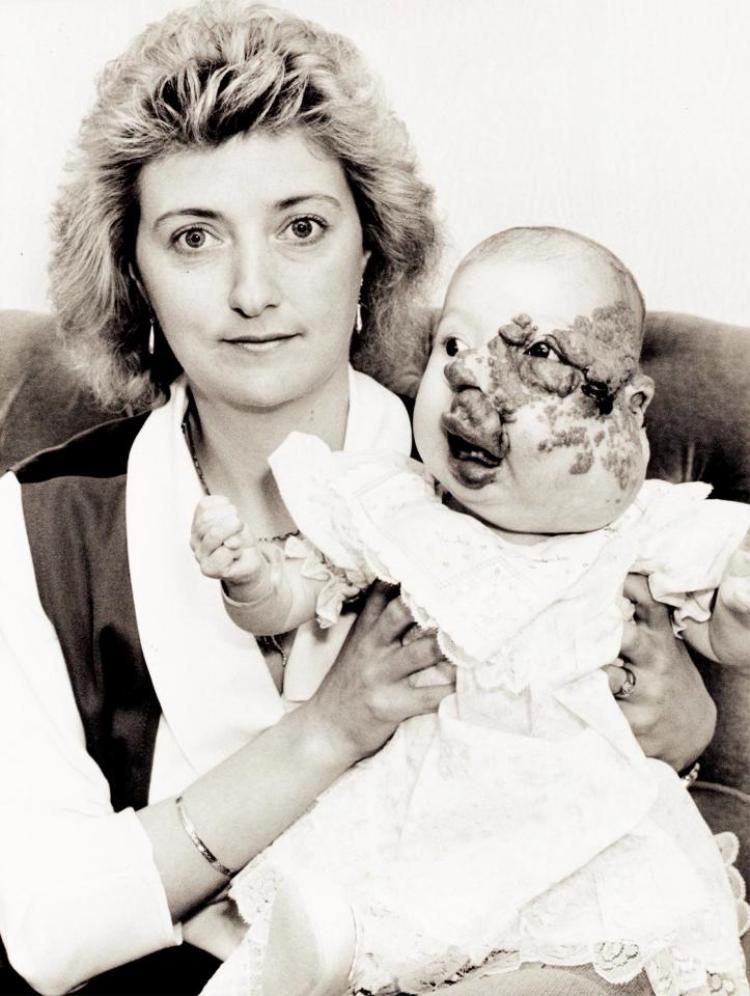 Không may mắn như nhiều người khác, Cody Hall sinh ra với vết bớt lớn trên mặt