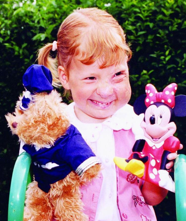 Cô gái nhỏ bé đã phải trải qua 18 cuộc phẫu thuật đau đớn trong suốt 14 năm liền