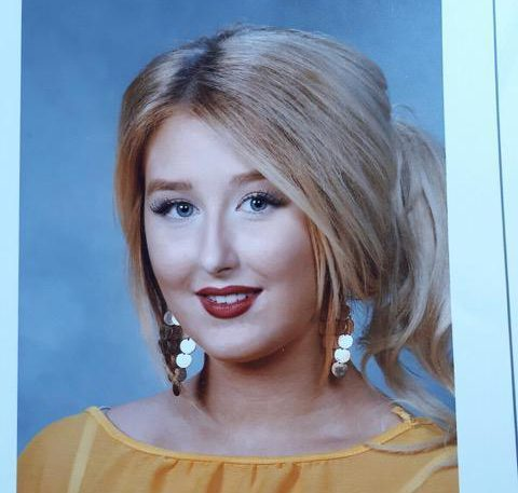 Amanda trước khi phẫu thuật thẩm mỹ đã rất xinh đẹp.