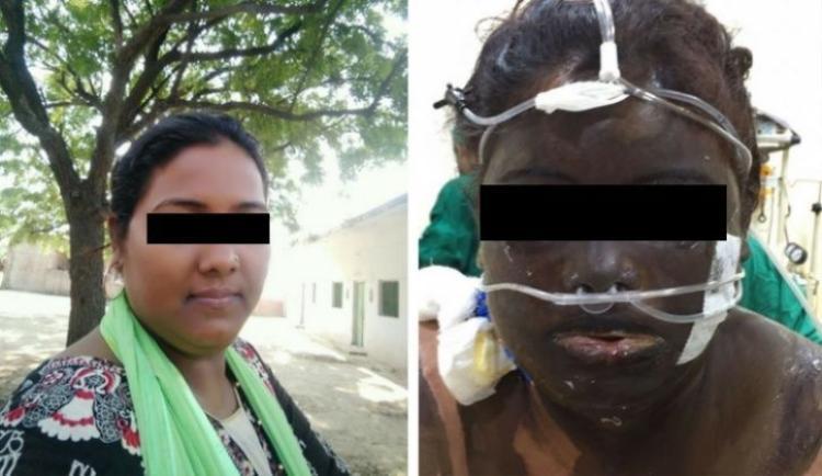 Nạn nhân trước và sau khi bị chồng tạt axit.