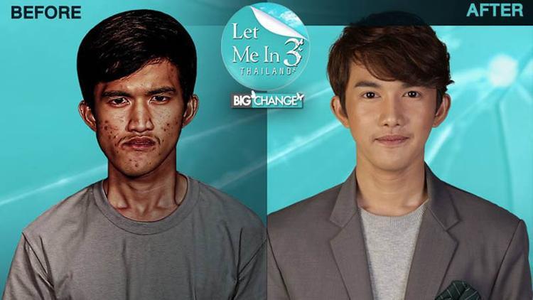 Sự thay đổi kinh ngạc của chàng trai Noppajit Monlin ở Thái Lan sau khi phẫu thuật thẩm mỹ.