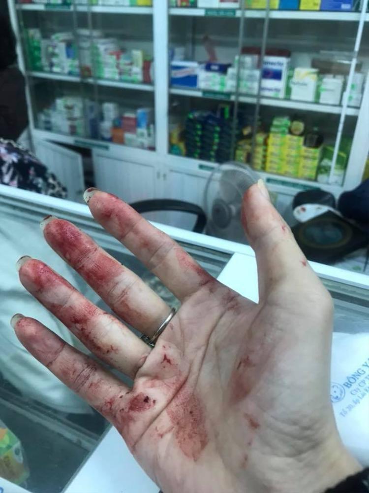 Vết thương của chị Linh chảy máu khá nhiều.