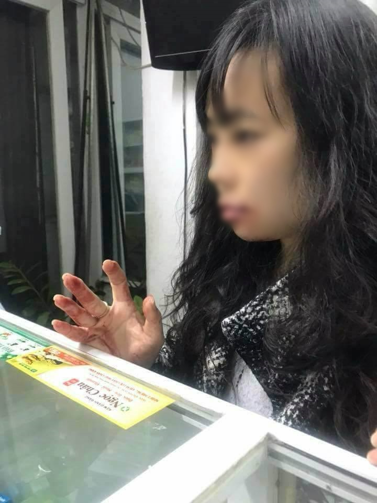 Chị Linh bị tài xế hành hung.