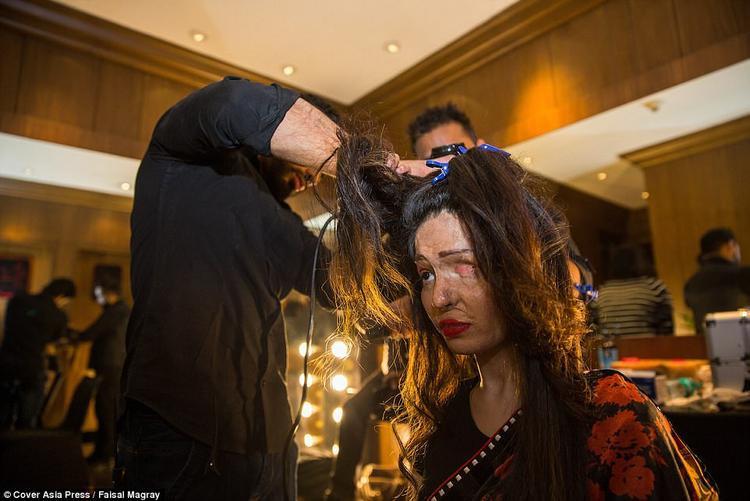 """Đêm hội thời trang đặc biệt trên do Tổ chức """"Make Love Not Scars"""" tại New Delhi, Ấn Độ, lên ý tưởng thực hiện. Tất cả trang phục trong đêm hội này đều những thương hiệu nổi tiếng như Rohit Bal, Ranna Gill và Archana Kochhar tài trợ. Năm nay, đêm hội đặc biệt này được diễn ra tại khách sạn Lalit ở New Delhi."""
