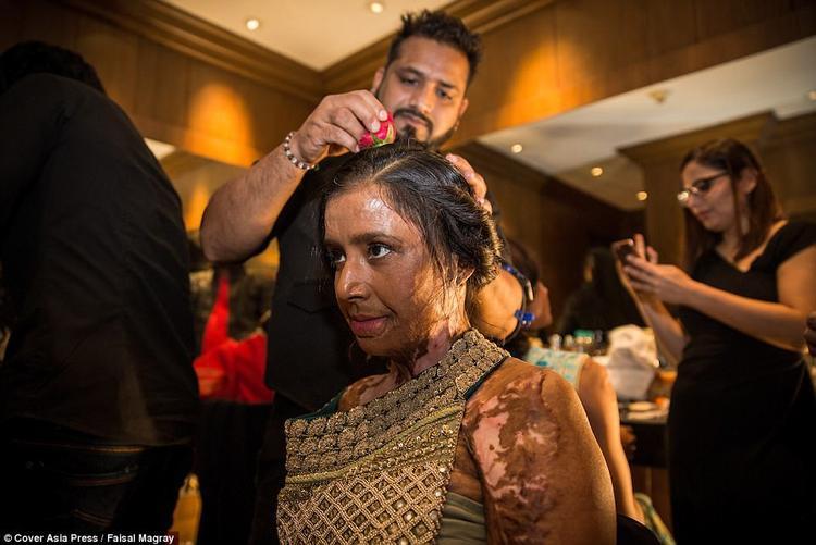 Anju Singh, 32 tuổi, không chỉ biến dạng ở mặt, mà các vùng khác trên cơ thể cô cũng bị ảnh hưởng nghiêm trọng.