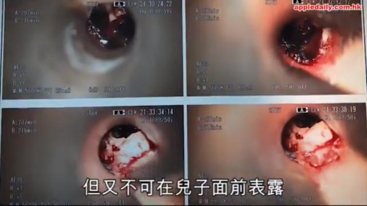 Các bác sĩ phát hiện một mẩu tẩy bút chì từ trong tai phải cậu bé.