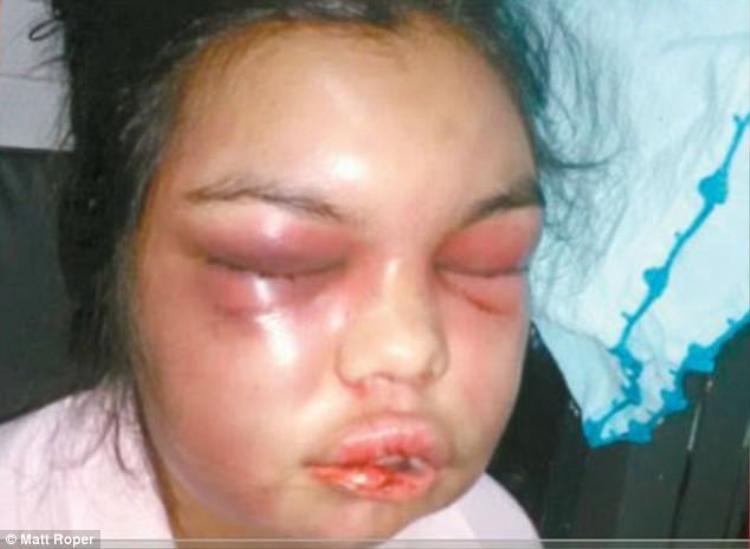 Cô bị đánh đến nỗi khuôn mặt sưng vù, biến dạng.