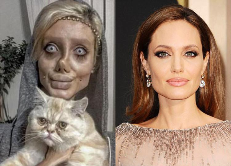 """Hẳn bạn vẫn còn nhớ """"phiên bản lỗi"""" của Angelina Jolie sau hàng chục cuộc phẫu thuật. Cô gái Sahar Tabar, 19 tuổi, người Iran, đã trải qua ít nhất 50 cuộc phẫu thuật thẩm mỹ để sở hữu ngoại hình giống với thần tượng."""