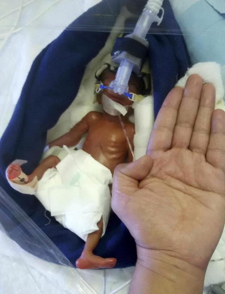 Sau 7 ngày, Manushi có thể tự thở và bú sữa mẹ.