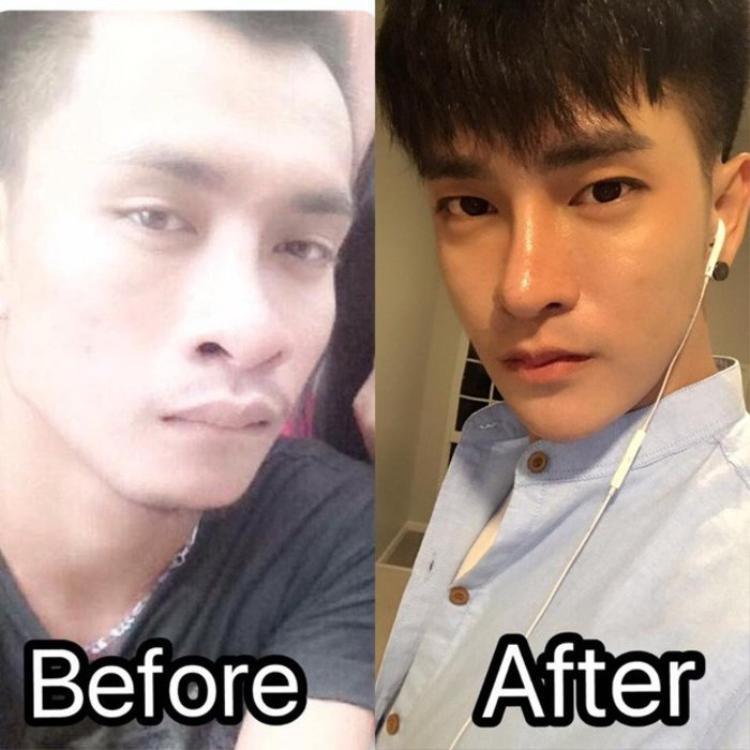 Chi hàng tỷ đồng và gần 30 cuộc phẫu thuật, chàng trai từng xấu như Lệ Rơi đã có nhan sắc như idol Kpop