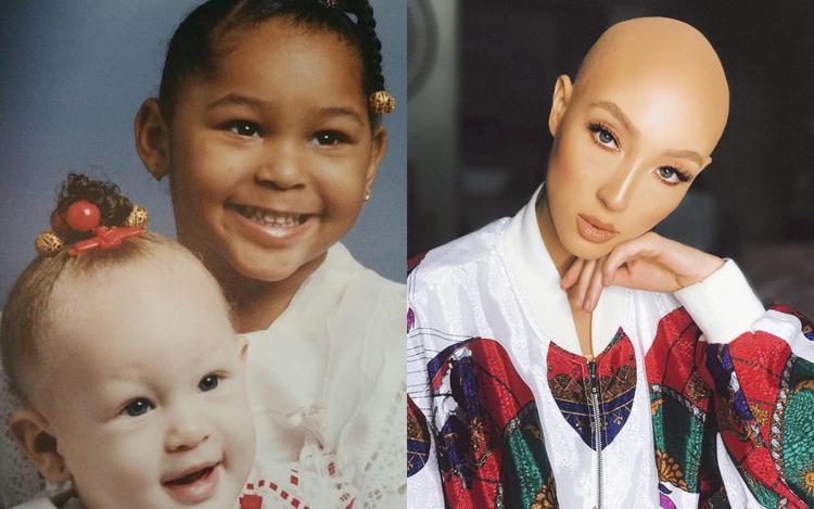 Căn bệnh tự miễn dịch khiếnJeana Turner rụng tóc từ bé.