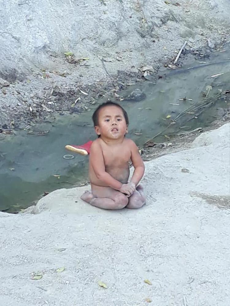 Hình ảnh trước đó của bé Pàng từng khiến nhiều người xót xa.
