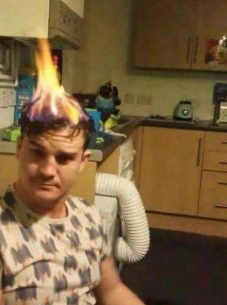 Thôi thì nhà không có rơm, đốt tạm tóc cũng được.