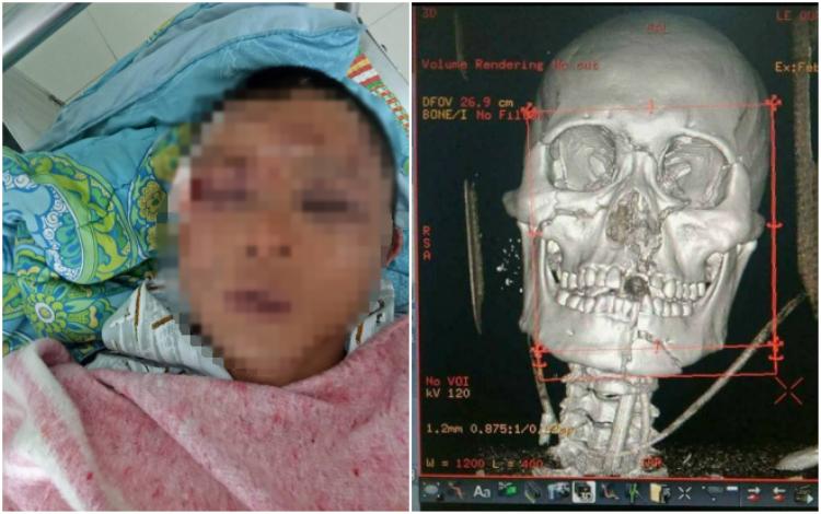 Anh Tuấn bị đa chấn thương rất nặng sau khi bị người dân đánh oan vì nghi bắt cóc.