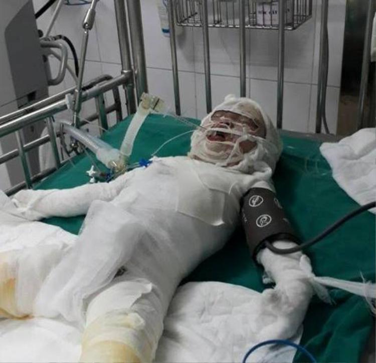 Bé Nhật Linh qua đời sau vụ bỏng vôi.