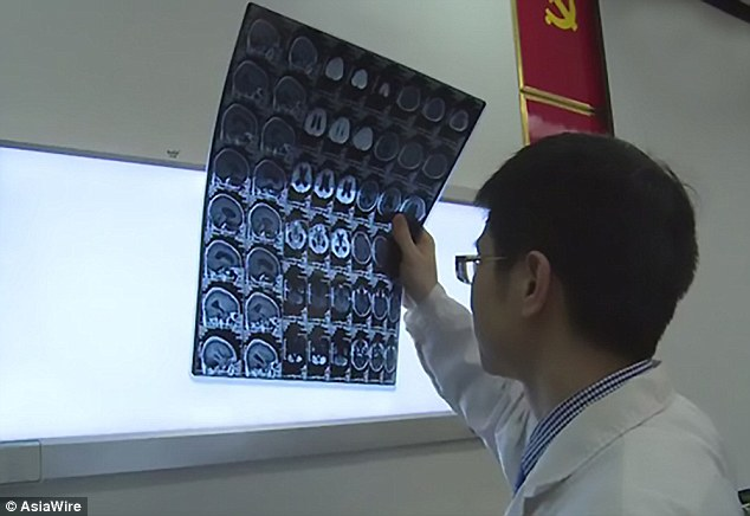 Ông Ngô cho biết ông bị đau đầu từ khoảng nửa năm trước.Trước đó ông có ăn thịt lợn sống.