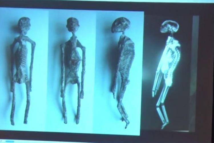 Hình dạng đặc biệt này giúp cho các nhà khoa học có thể cẩn thận nghiên cứu nội tạng của xác ướp. Ảnh: The Sun