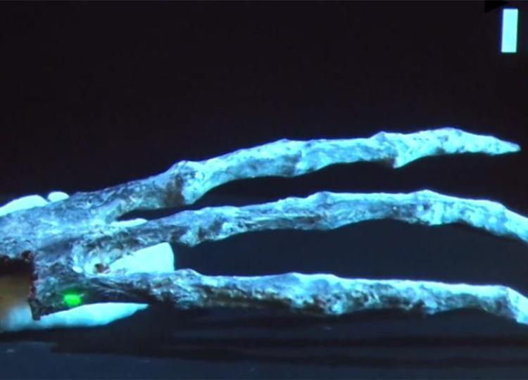 Cấu trúc xương sườn của Maria mang hình sống tàu ở nửa trên, khung xương sườn bao gồm một số xương hình bán nguyệt. Ảnh: The Sun