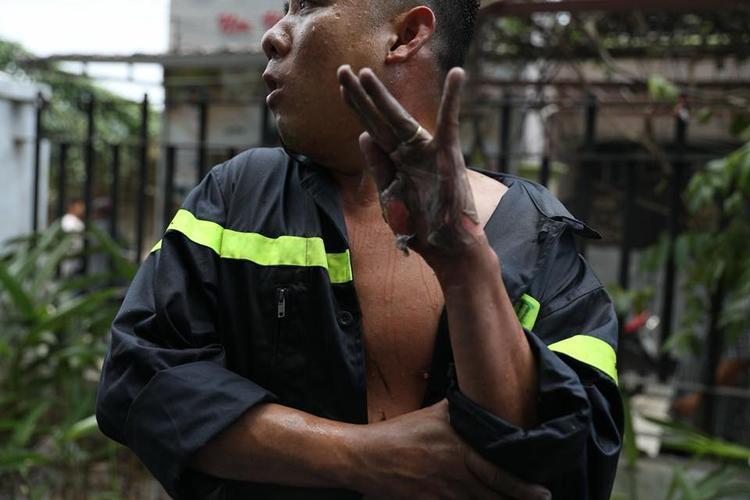 Bàn tay của anh lính bị tróc da hoàn toàn.