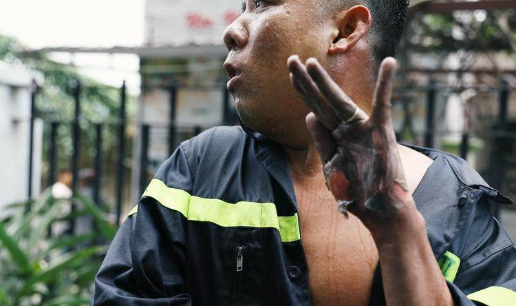 Coàn bộ phần da tay của người chiến sĩ trẻ bị bỏng lửa trong quá trình chữa cháy khiến ai cũng xót xa. Ảnh: VTV24.