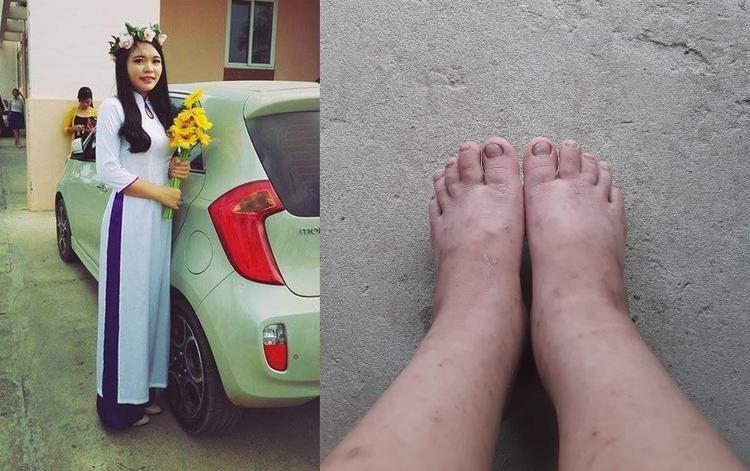 Không chỉ thay đổi về vóc dáng, đôi chân của mẹ Minh Mỡ còn bị phù và có dấu hiệu nổi mẩn ngứa.