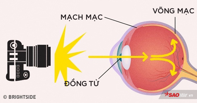 Màu đỏ mà bạn thấy đến từ các mạch máu trong mắt.