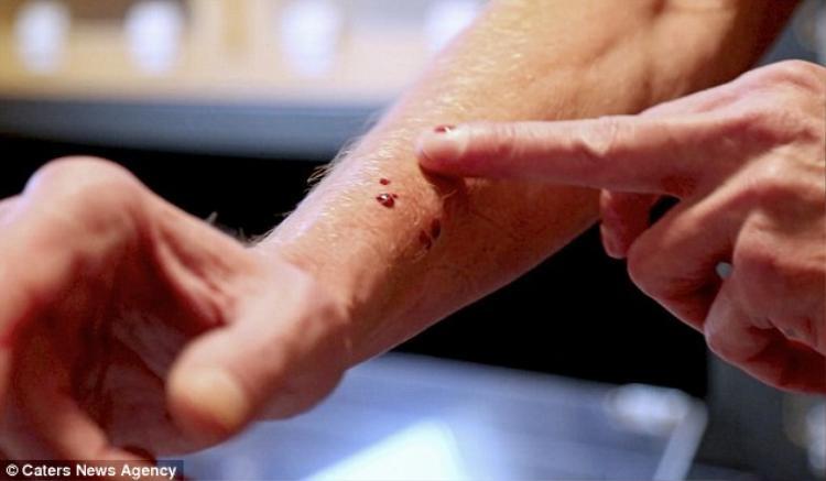 Thông thường, một vết cắn từ loài rắn cực độc Manba Đen có thể khiến con người chết trong đau đớn trong 15 phút nhưng đối với Tim thì đó chỉ là chuyện nhỏ.