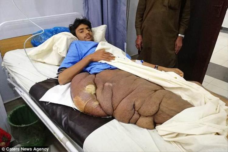 khối u rất lớn trên cơ thể Muhammad Essa Pallari. Ảnh Caters News Agency