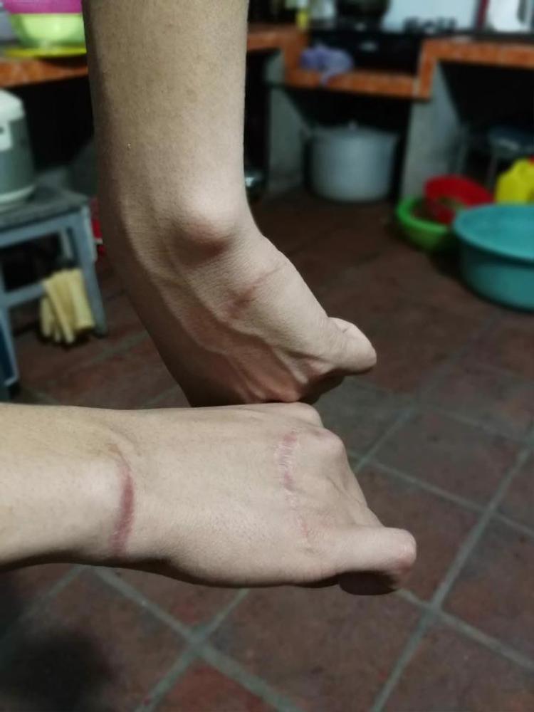 Bàn tay bị đứt gân của anh chàng có nick name Huy Sắc.