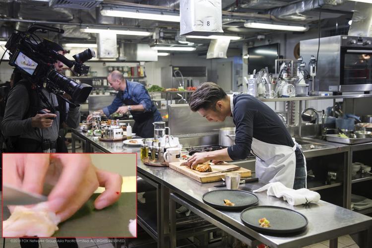 Căng thẳng vì áp lực thời gian, Tạ Đình Phong cắt trúng ngón tay út của mình trong lúc thái thịt gà.